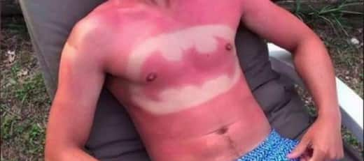 Sunburn like a champion